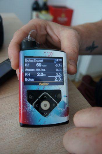 """<p class=""""caption"""">Auf dem Gerät wird ihm immer gleich angezeigt, wie hoch seine Werte sind.</p>"""