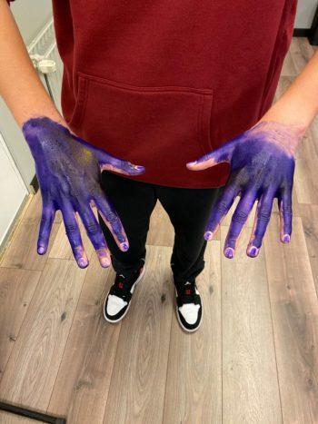 """<p class=""""caption"""">Gezeichnet: Als Anuschka einmal einen gravierenden Fehler machte, wurden ihr die Hände eingefärbt.</p>"""